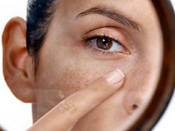 Витамины для кожи склонной к пигментации