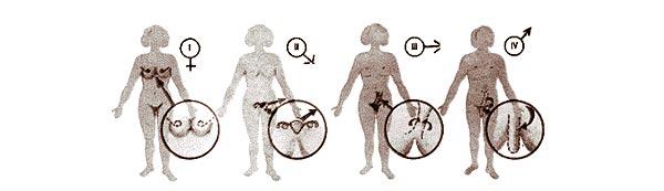операция по смене пола из мужчины в женщину фото
